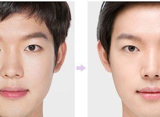 Nâng mũi ở nam giới là một quá trình phức tạp
